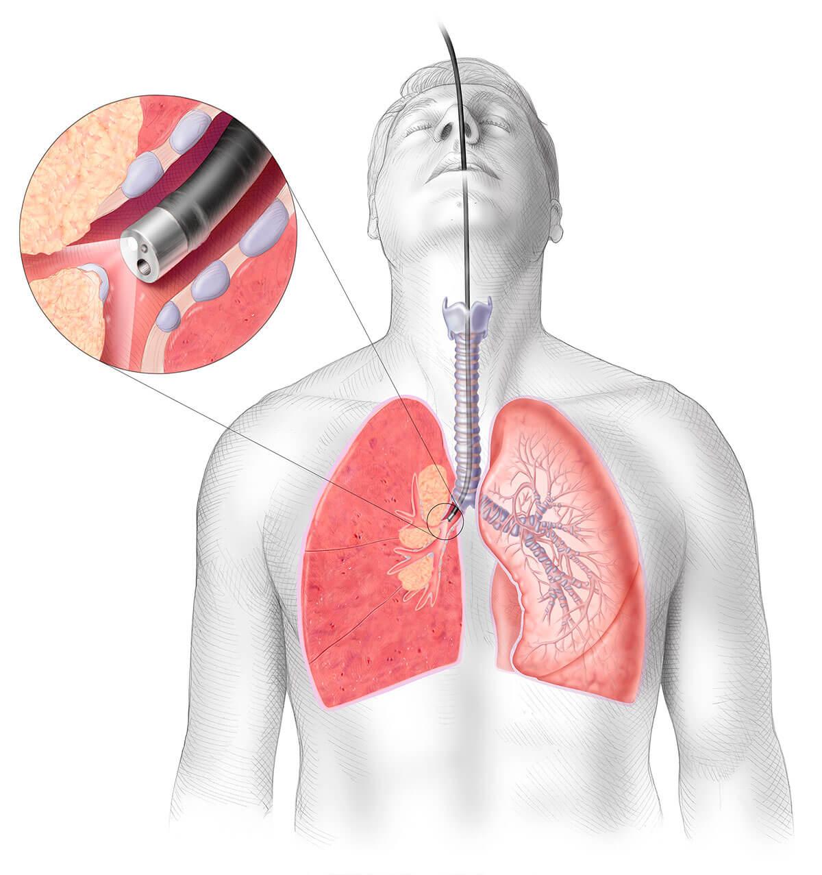 cyste på lungen