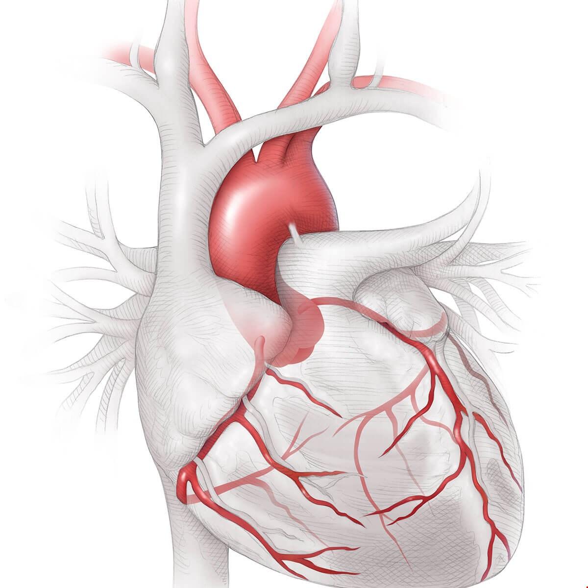 tegn på hjerteinfarkt damer