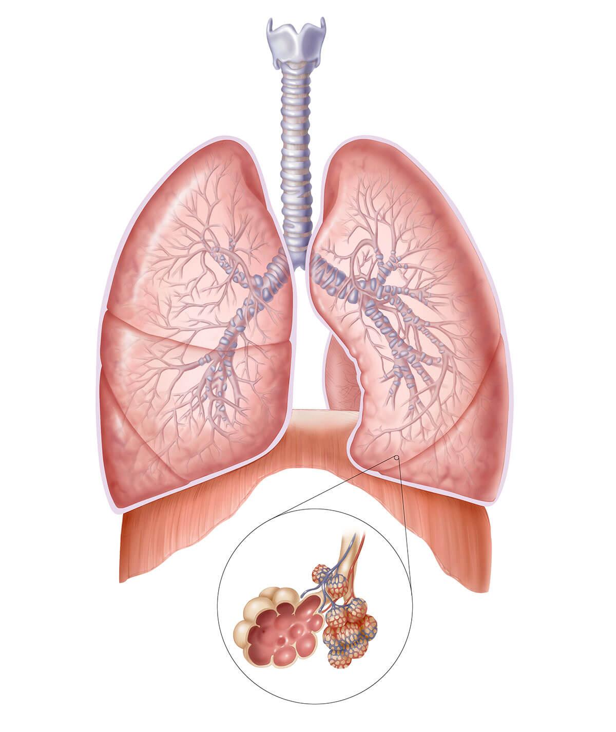 vann i lungene etter operasjon